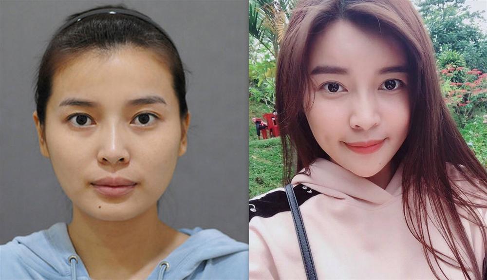 Cao Thái Hà trước và sau khi phẫu thuật thẩm mỹ.