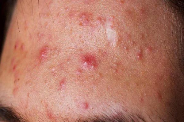 5 loại mụn trên da dù có ngứa thế nào cũng tuyệt đối không được nặn