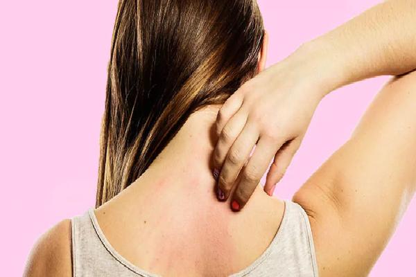 Thường xuyên ngứa da có thể là do bạn đã mắc phải một trong 5 vấn đề sức khỏe sau