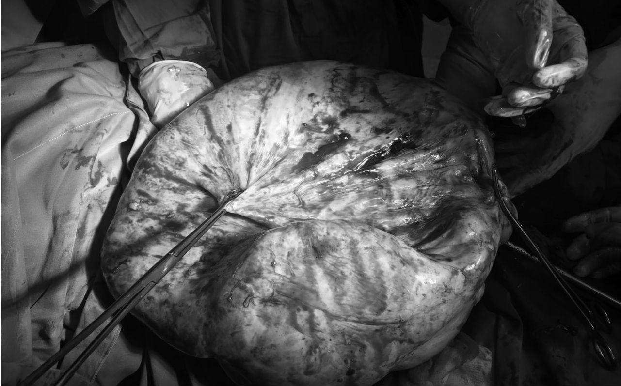 Khối u buồng trứng 17kg