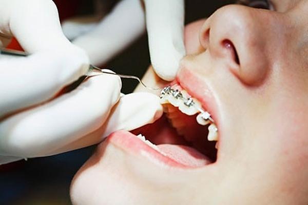 Những tai nạn hy hữu do niềng răng