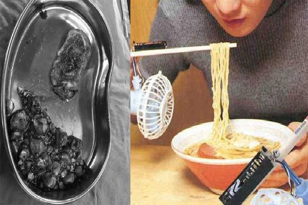 Cô gái 20 tuổi bị 100 viên sỏi mật vì hay ăn món hàng triệu người vẫn thích