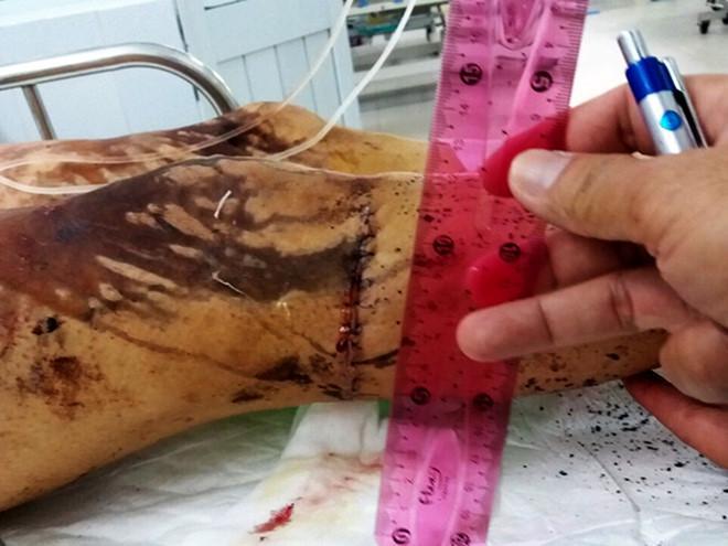 Vết thương vùng chân của anh Võ Duy Nghiệm sau khi bị kẻ xấu tạt axit, dùng dao tấn công. Ảnh: A.Q.