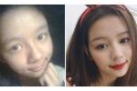 Ảnh quá khứ của girl Nghệ An được báo Hàn khen nức nở chứng minh: Đừng chê con gái xấu khi họ còn chưa dậy thì xong!