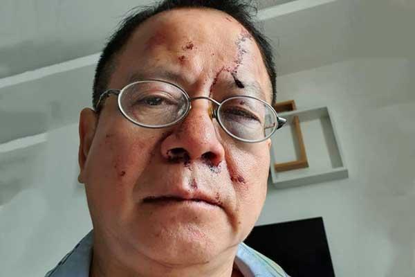 Việt kiều Đức tố bị nhóm thanh niên đánh khi đi hát karaoke ở Sài Gòn
