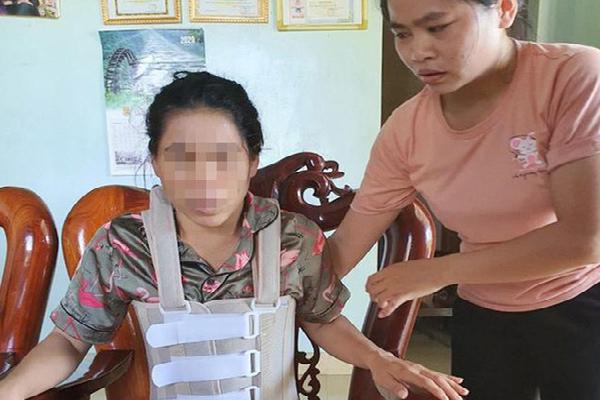 Chị Ánh bị chồng đánh đập gây thương tật 42%.
