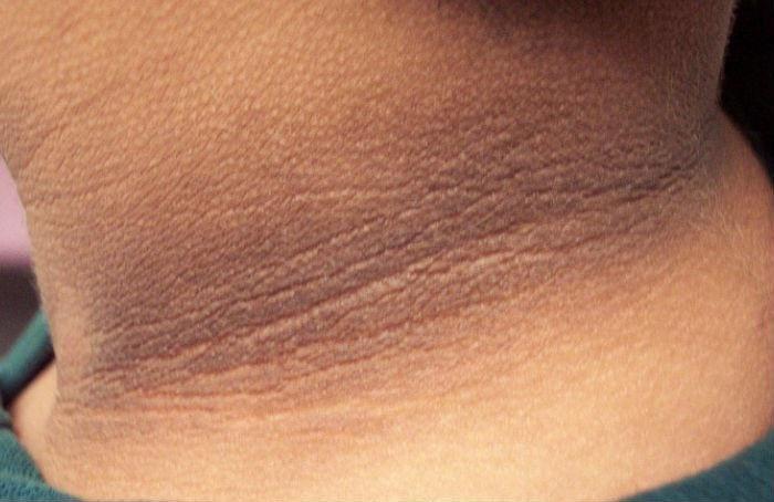 Sức khỏe - Nếu có những dấu hiệu này trên da, bạn nên đến viện khám ngay (Hình 2).