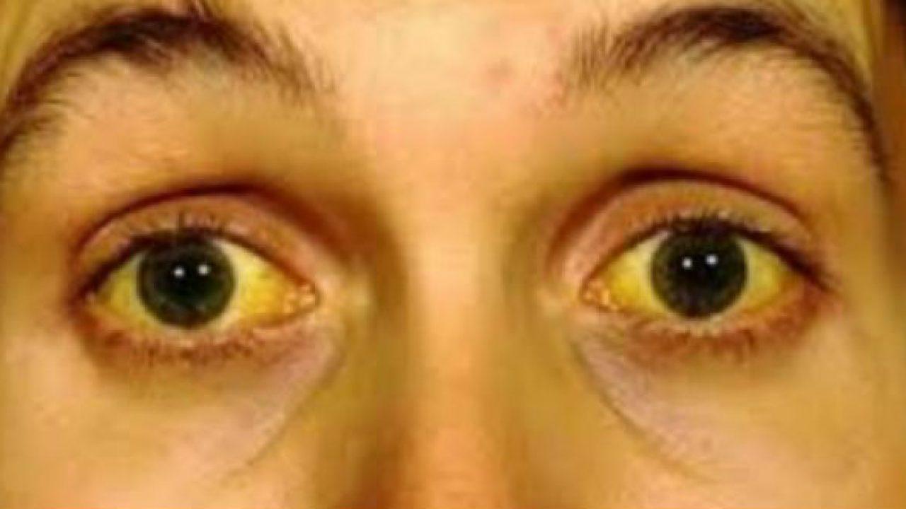 Sức khỏe - Nếu có những dấu hiệu này trên da, bạn nên đến viện khám ngay (Hình 4).