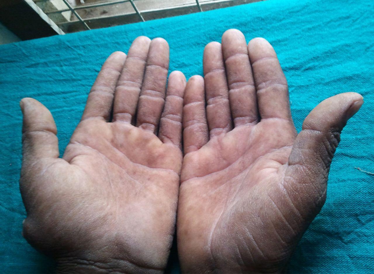 Sức khỏe - Nếu có những dấu hiệu này trên da, bạn nên đến viện khám ngay (Hình 5).