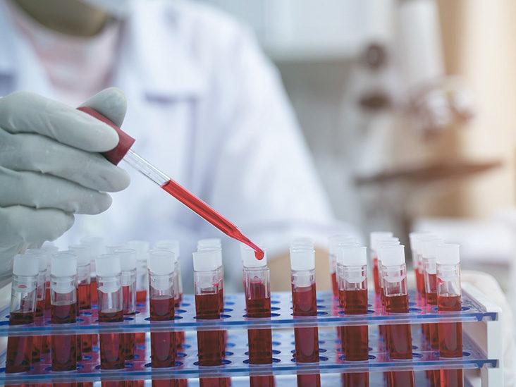 Tỷ lệ người mang dòng máu quý hơn vàng là 1/6.000.000. Ảnh: iStock.