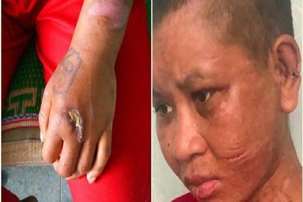 Cô gái tố bị chủ tra tấn: Bà chủ 'dùng cả cây gỗ đã đóng đinh đập lên đầu, lên mặt'