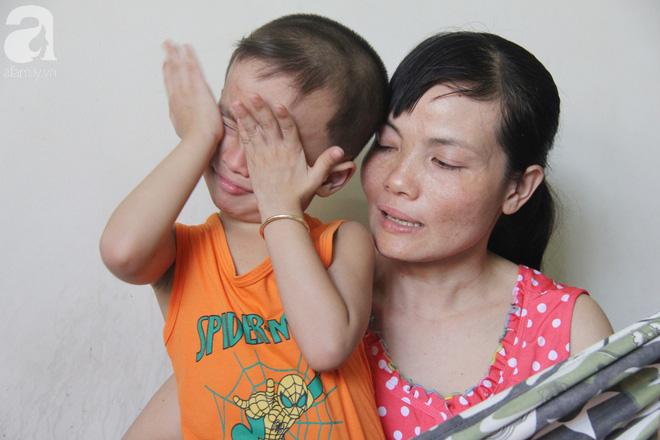 Bị điện giật cháy người không có tiền chạy chữa, bố xót xa nhìn con trai 4 tuổi không nhận ra mình - Ảnh 4.