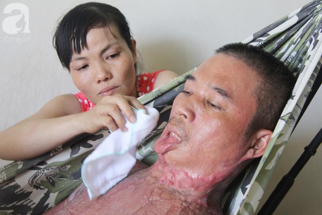 Bị điện giật cháy người không có tiền chạy chữa, bố xót xa nhìn con trai 4 tuổi không nhận ra mình - Ảnh 7.
