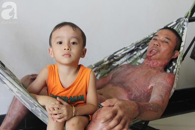 Bị điện giật cháy người không có tiền chạy chữa, bố xót xa nhìn con trai 4 tuổi không nhận ra mình - Ảnh 8.