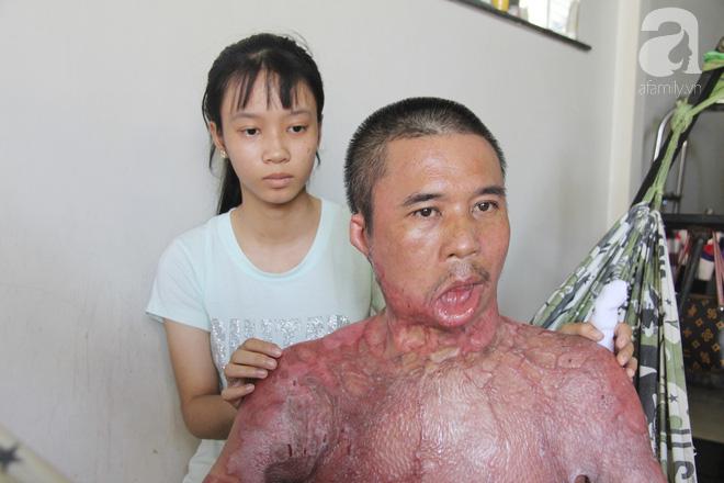 Bị điện giật cháy người không có tiền chạy chữa, bố xót xa nhìn con trai 4 tuổi không nhận ra mình - Ảnh 10.