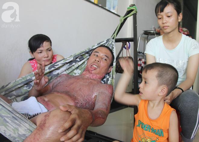 Bị điện giật cháy người không có tiền chạy chữa, bố xót xa nhìn con trai 4 tuổi không nhận ra mình - Ảnh 16.