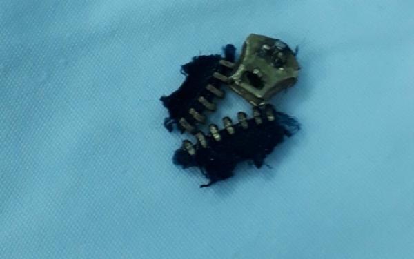Phần dây khóa quần được bác sĩ tách ra khỏi bộ phận sinh dục của bệnh nhân. Ảnh: V.D.