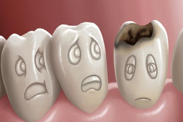 6 dấu hiệu cảnh báo hàm răng của bạn bắt đầu bị lão hóa