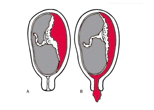 Sót nhau dễ dẫn đến băng huyết sau sinh. (Ảnh minh họa)